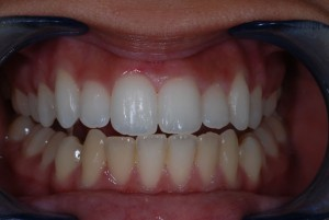 teeth-whitening-1